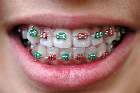 colored braces braces orthodontic specialists