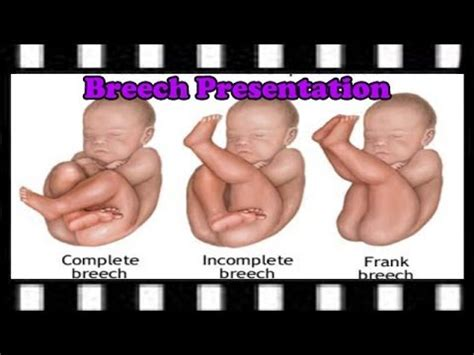 icd 9 code for c section delivery fully extended breech frank breech baby birth how i