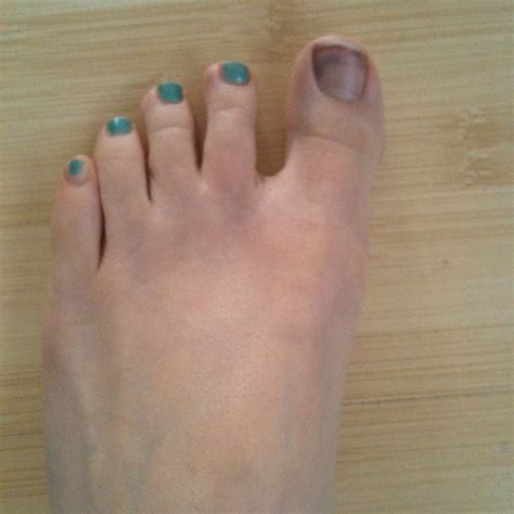 bruised nail bed bruised toenail flickr photo sharing
