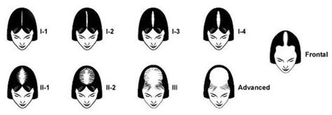 female pattern hair loss classification female pattern baldness hair sciences of colorado dr