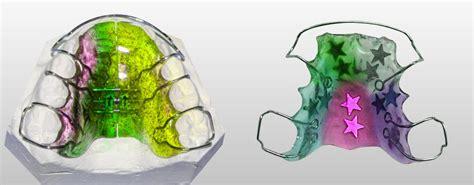 apparecchi mobili denti lodontoiatrico ortodonzia turbigo www