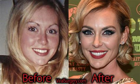 jessica robertson surgery jessica robertson plastic surgery before after facelift
