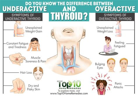 weight loss underactive thyroid underactive thyroid disease and weight loss todaynfl7v