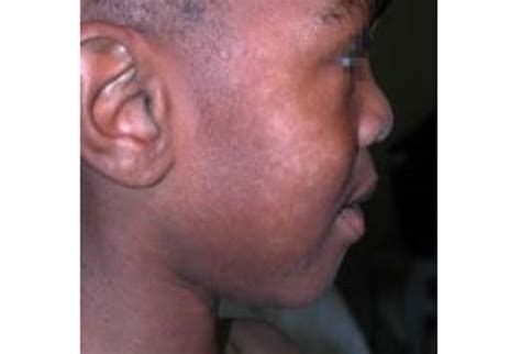 Light Spots On American by Pityriasis Alba Pictures Causes Diagnosis And Treatment Patienthelp