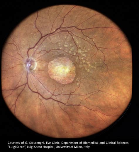 macular pattern dystrophy the retina reference eidon first true color confocal scanner centervue