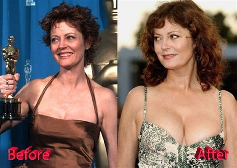 Big Bust From Dr Susan susan sarandon before and after breast implants