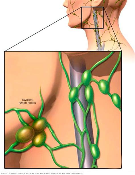 lymph nodes 1000 ideas about swollen lymph nodes on lymph