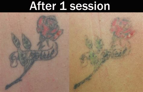 tattoo removal after 1 session laser removal 171 eternal