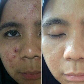Masker Saripohatji manfaat masker madu untuk jerawat masker jerawat
