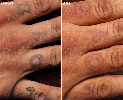 after tattoo removal care after laser removal removal