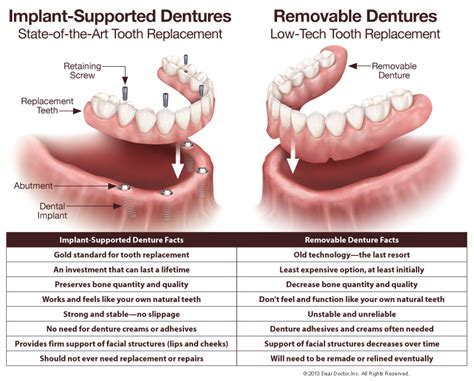 partial biography definition fixed vs removable dentures dentist tallahassee and
