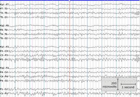 eeg pattern recognition quiz neuromed clinics epilepsy care clinic