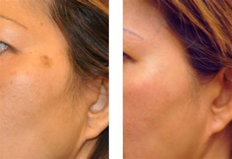 tattoo removal on brown skin brown spots age spots and removal san diego