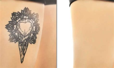 tattoo cover up permanent tattoo undone tattoo removal reviews and advice
