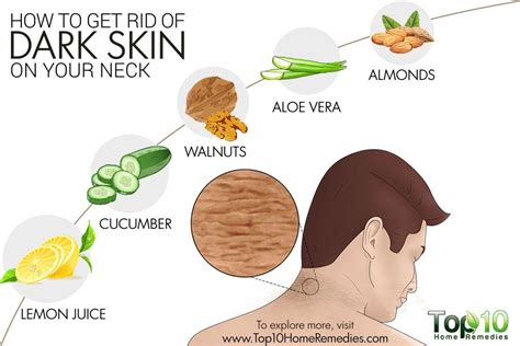 how to get rid of skin on your neck top 10 home