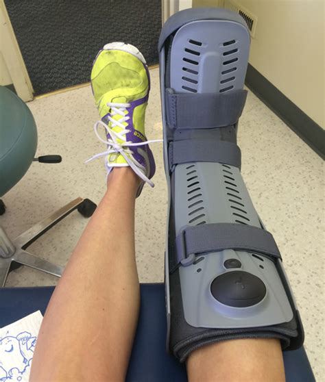foot stress fracture boot a stress fracture and a boot travel in fitness