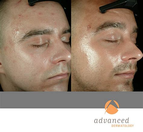 3 photodynamic therapy for acne philadelphia robert photodynamic therapy before and after photodynamic therapy
