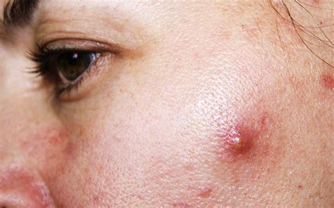 Cystic Acne Detox Diet by Reduce Size Of Cystic Acne Maple Suyrup Diet