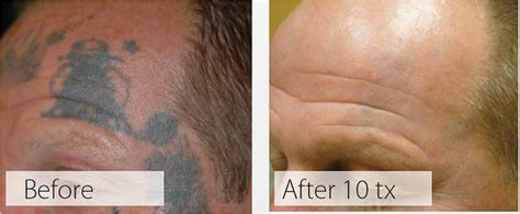facial tattoo removal removal back to blank
