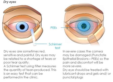 Lamp Administration by Dry Eyes Harley Street Clinica London