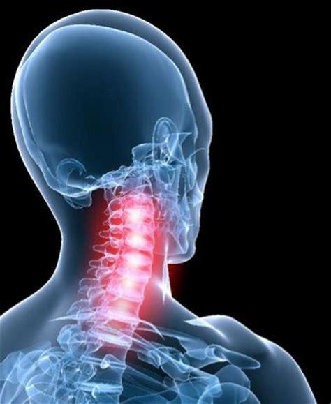 dolori dietro la testa terapia manuale nel dolore cervicale e radicolare roma