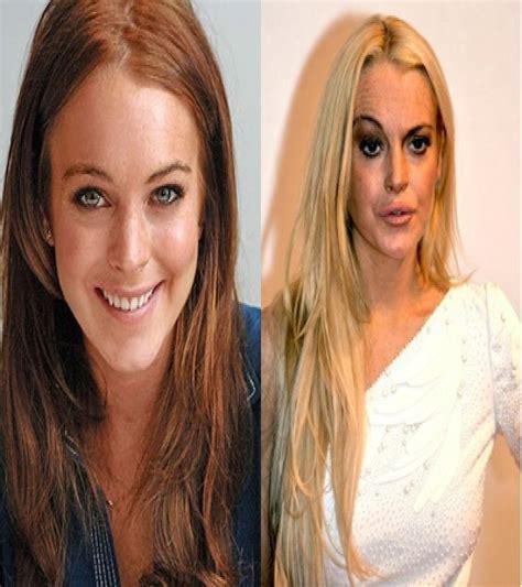 celebrity plastic surgery blog celeb surgery pics 20 of the worst celebrity plastic surgery disasters page