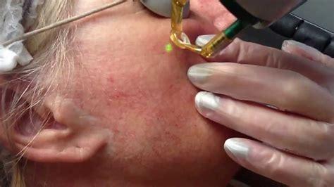 candela gentle yag laser treatment for thread veins with candela nd