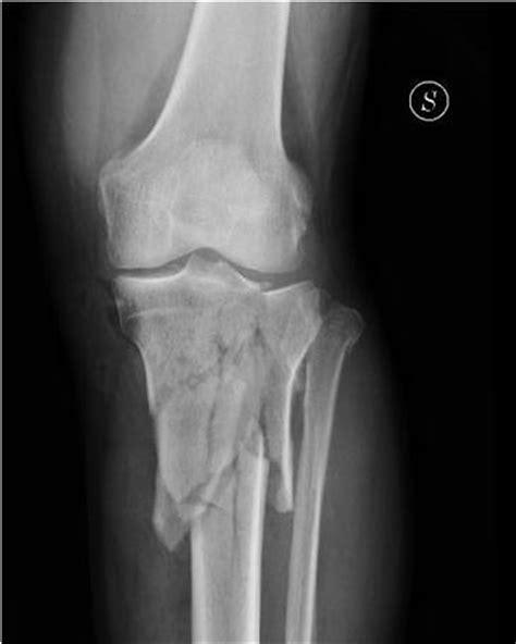 dolore al ginocchio parte laterale interna appartamento e famiglia piatto tibiale dolore alla gamba