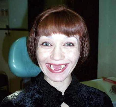 imagenes de negras sin dientes las mujeres mas feas del mundo las mujeres mas feas