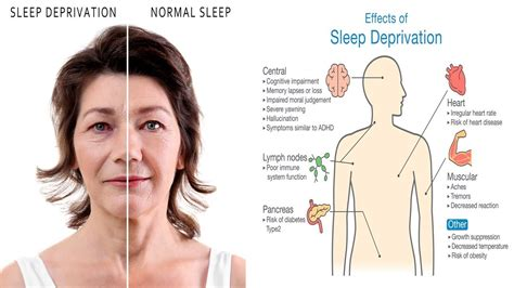 8 Signs Of Sleep Deprivation by 10 Scary Side Effects Of Sleep Deprivation