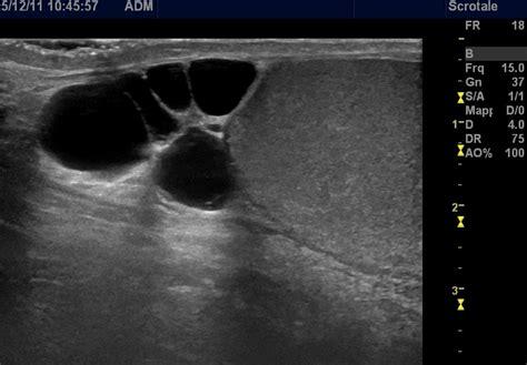 cisti in testa tumore studio medico ecografico dott paolo casini