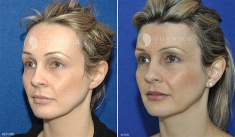 hairline implants gallery hairline lowering silkwood medical