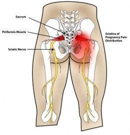 reason for back pain after c section 25 best ideas about hip pain on pinterest tight hip