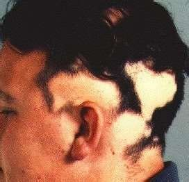 bald patches on head in older women alopecia areata causes symptoms baldness and hair