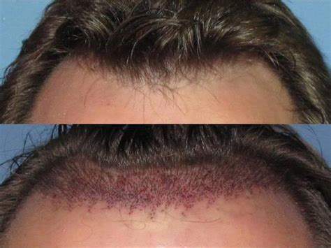 hair transplant problems hair transplants can accommodate customers with all types