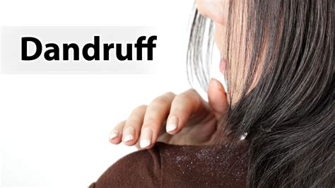 32 home remedies to remove dandruff nutri choice 4 u