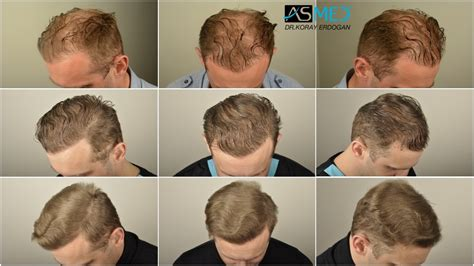 hair transplants 1000 graft coverage transplants 1000 graft coverage synthetic hair