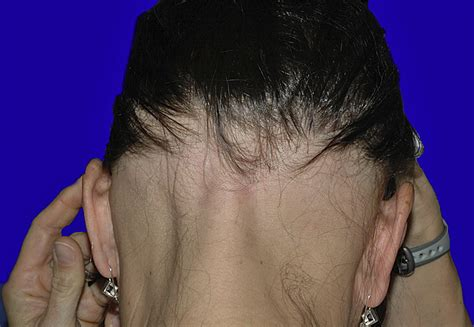 ophiasis pattern hair loss alopecia areata update journal of the american academy