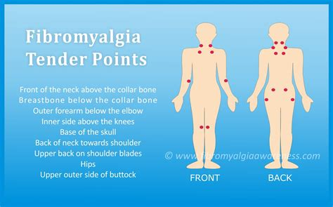 18 tender points of fibromyalgia diagram fibromyalgia awareness information tips support