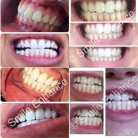 Smile Enhance 7 Day Detox by 182 Best Teeth Cleaning Images On Teeth
