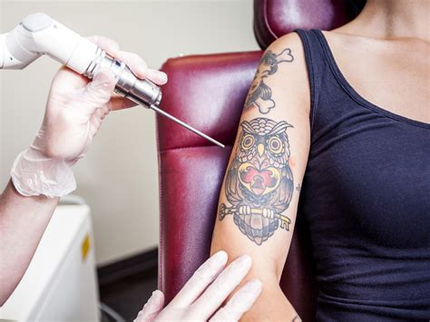 removing tattoos ask dr weil