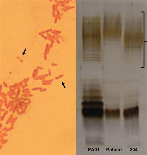 figure 3 gram staining pseudomonas aeruginosa in microscopy