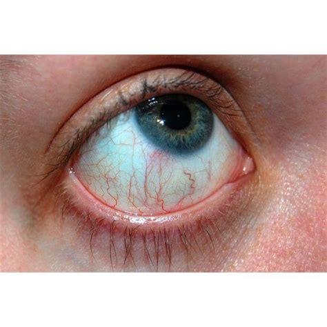 eye allergies allergy relief for irritated pills eye drops home remedies