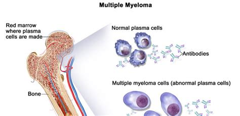 m protein and myeloma myeloma treatment and prognosis 187 how to relief