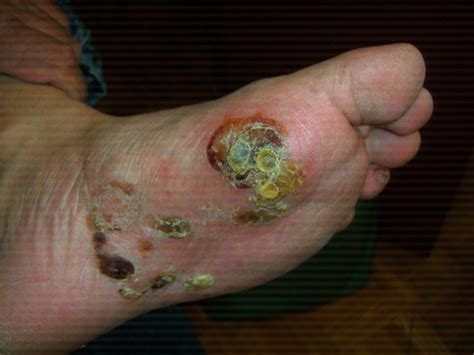tattoo infection blisters eczema blisters eczema free skin