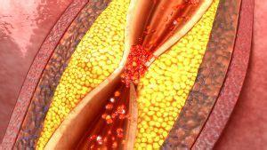clogged arteries signs  symptoms  arterial plaque