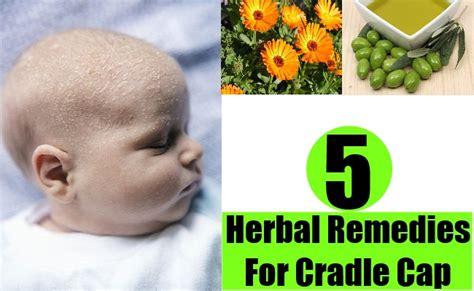 natural treatment for seborrheic dermatitis cradle cap natural treatment for seborrheic dermatitis cradle cap top
