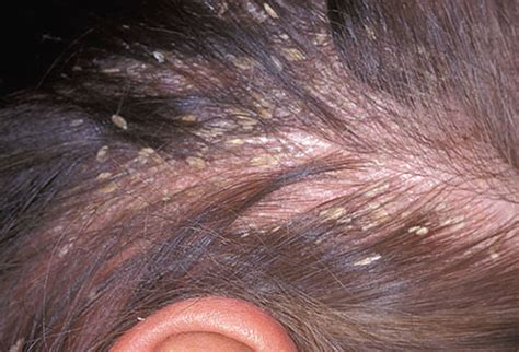 progesterone on scalp pictures of what your hair and scalp say about your health