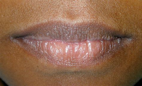 tattoo of us herpes mild herpes on lip pictures photos