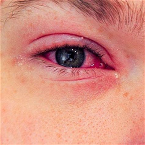 eye infection treatment 6 cures for eye infection how to cure eye infection naturally home